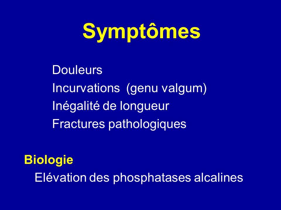 Dysplasie fibreuse F - 35 ans : Névralgies CB et cervicalgies