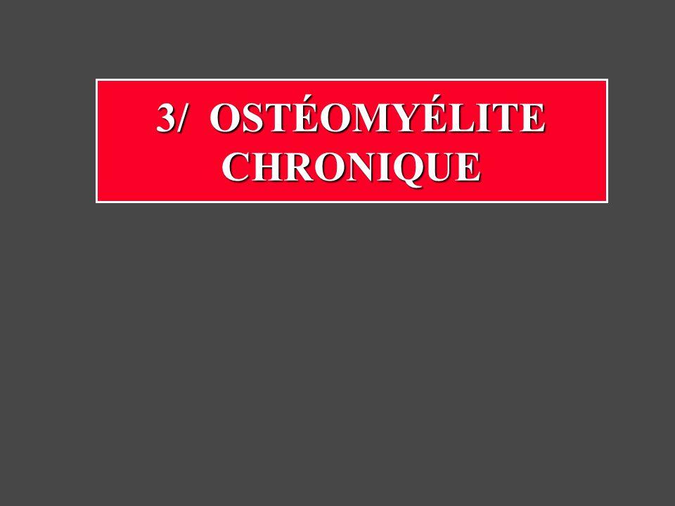 15% des ostéomyélites Mauvais traitement initial Séquestration - fistule chronique Les antibiotiques ne peuvent atteindre los nécrosé Risque damylose secondaire Carcinome rare sur danciennes fistules Ostéite chronique