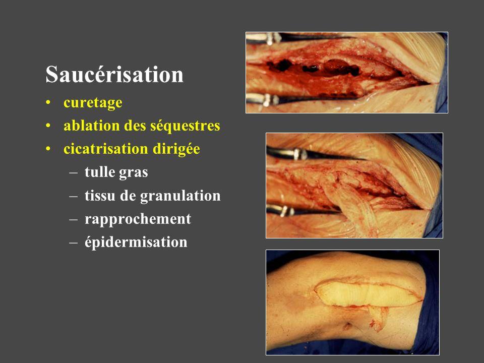 Cicatrisation dirigée –tulle gras –tissu de granulation –rapprochement –épidermisation