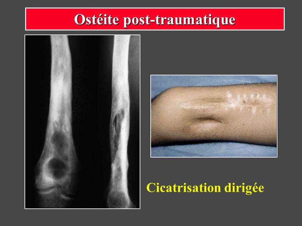 Ostéite sur fracture complexe Fixateur externe fémoro-tibial : arthrodèse du genou