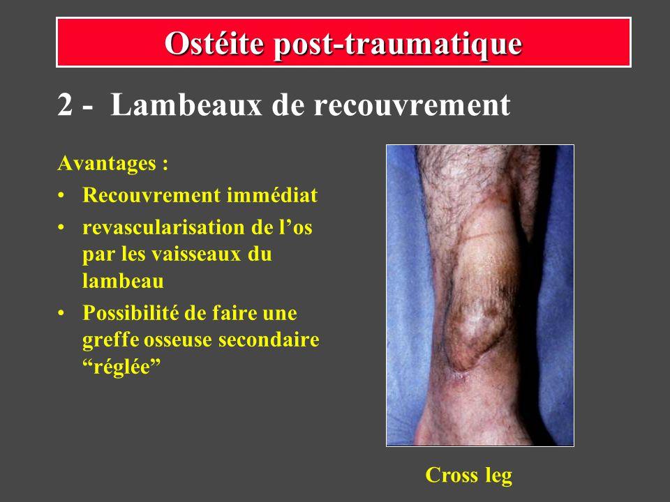 Cross-leg : couverture de la face antérieure de la jambe avec un lambeau provenant de la face postérieure de lautre jambe