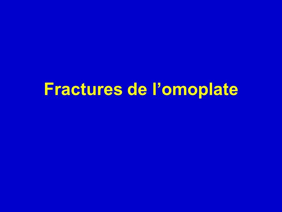 Fractures de lomoplate