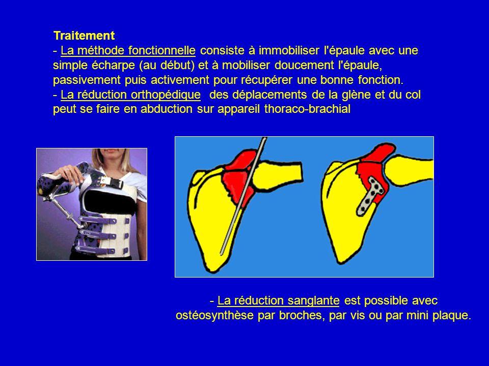 Traitement - La méthode fonctionnelle consiste à immobiliser l épaule avec une simple écharpe (au début) et à mobiliser doucement l épaule, passivement puis activement pour récupérer une bonne fonction.