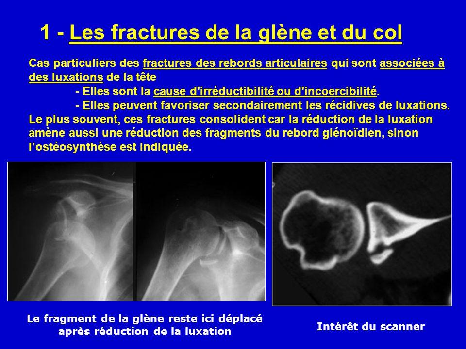 1 - Les fractures de la glène et du col Cas particuliers des fractures des rebords articulaires qui sont associées à des luxations de la tête - Elles sont la cause d irréductibilité ou d incoercibilité.
