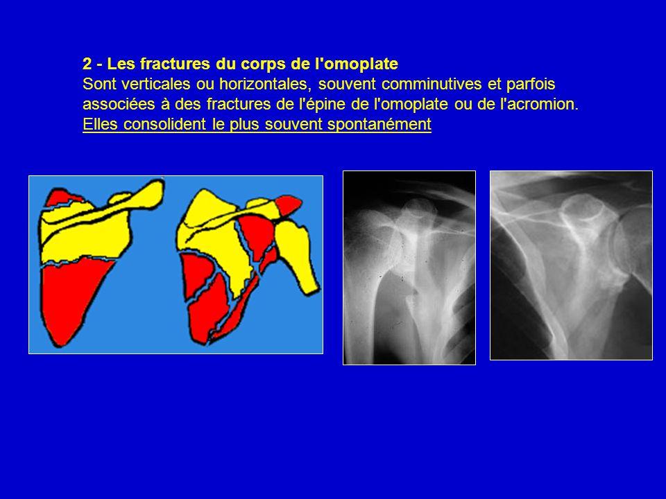 2 - Les fractures du corps de l'omoplate Sont verticales ou horizontales, souvent comminutives et parfois associées à des fractures de l'épine de l'om