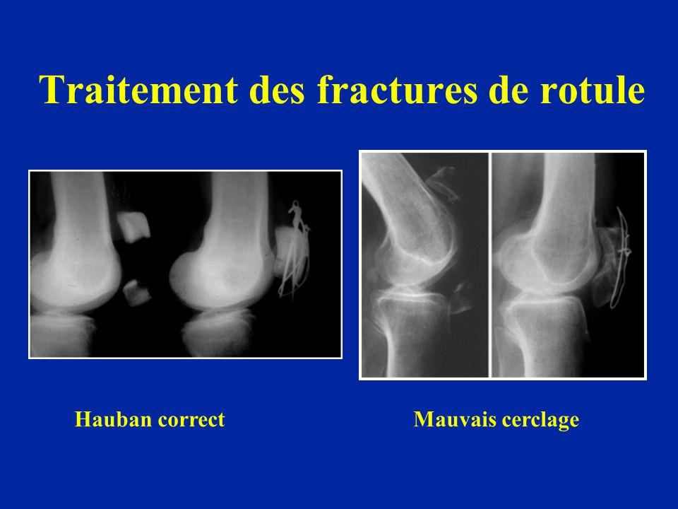 Traitement des fractures de rotule Hauban correct Mauvais cerclage