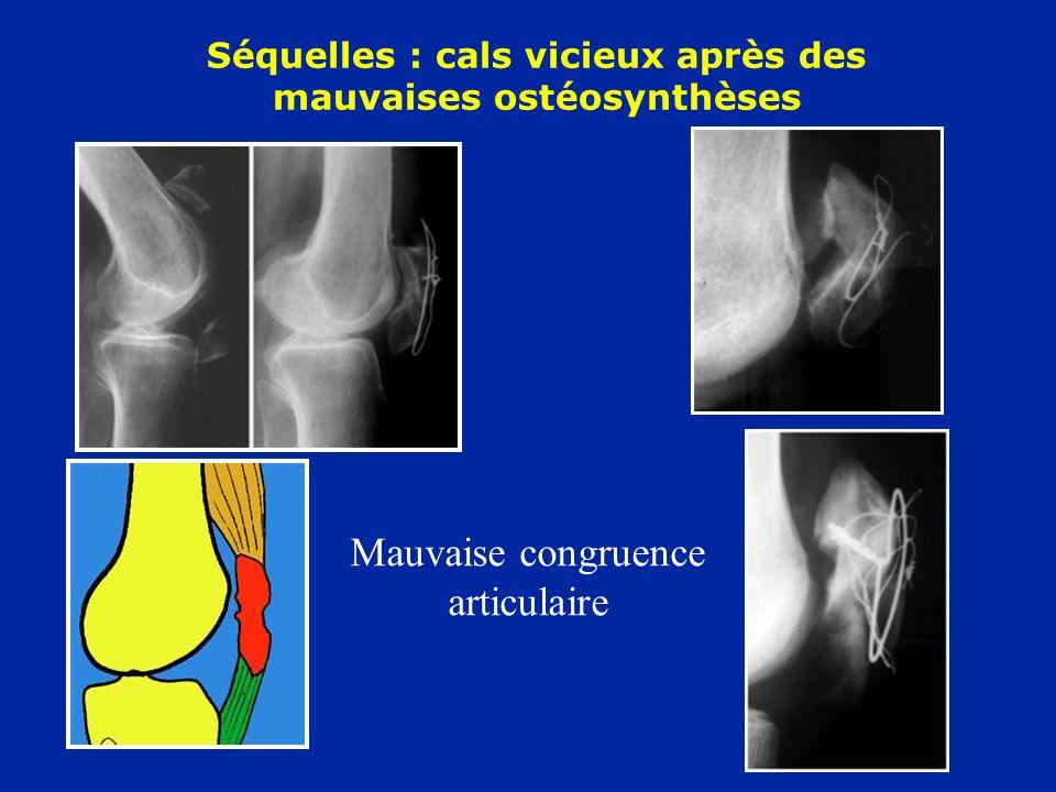 Séquelles : cals vicieux après des mauvaises ostéosynthèses Mauvaise congruence articulaire