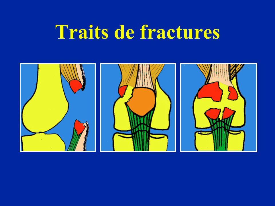Traits de fractures