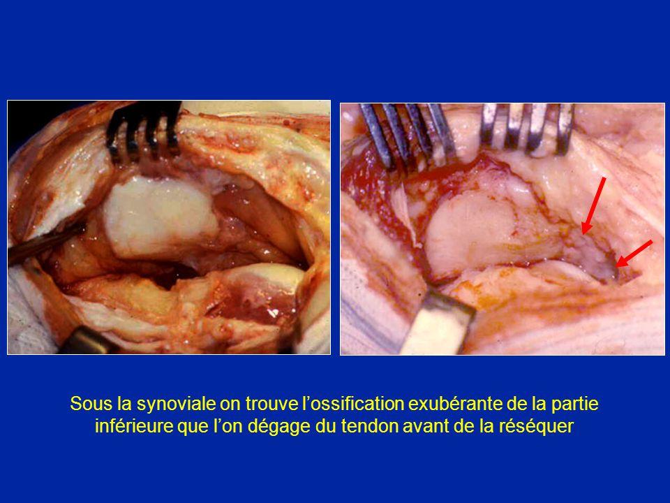 Sous la synoviale on trouve lossification exubérante de la partie inférieure que lon dégage du tendon avant de la réséquer