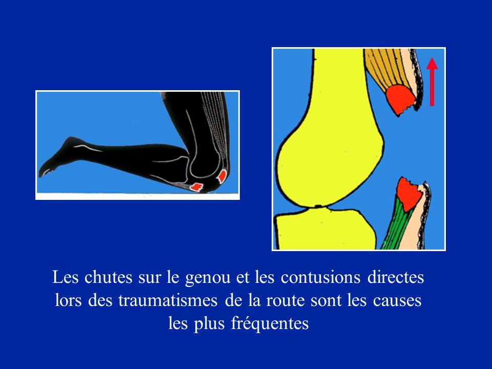 Les chutes sur le genou et les contusions directes lors des traumatismes de la route sont les causes les plus fréquentes