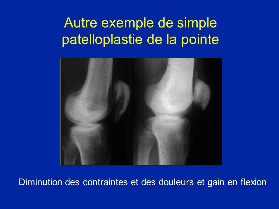Autre exemple de simple patelloplastie de la pointe Diminution des contraintes et des douleurs et gain en flexion
