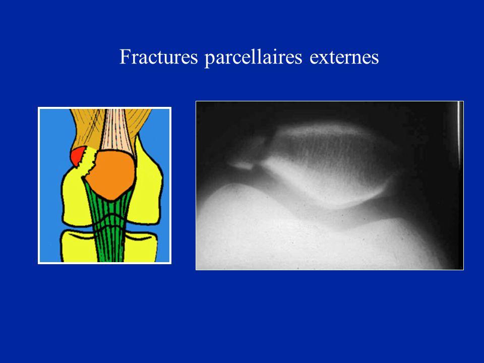 Fracture par choc direct Ablation du petit fragment ou consolidation spontanée