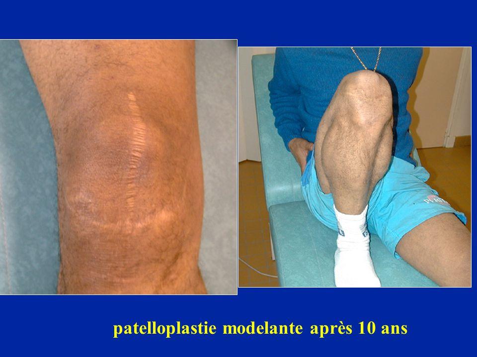 patelloplastie modelante après 10 ans
