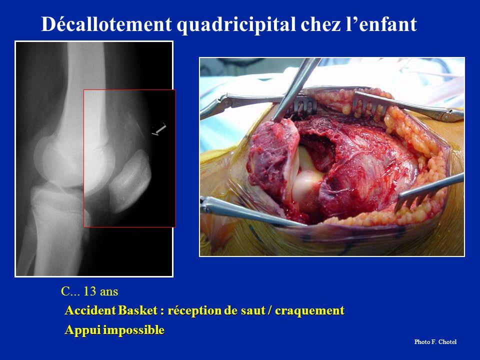C... 13 ans Accident Basket : réception de saut / craquement Appui impossible Appui impossible Décallotement quadricipital chez lenfant Photo F. Chote