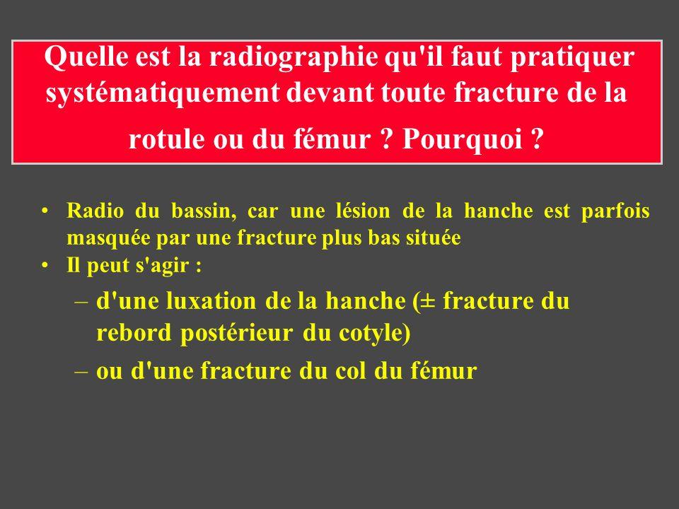 Quelle est la radiographie qu'il faut pratiquer systématiquement devant toute fracture de la rotule ou du fémur ? Pourquoi ? Radio du bassin, car une
