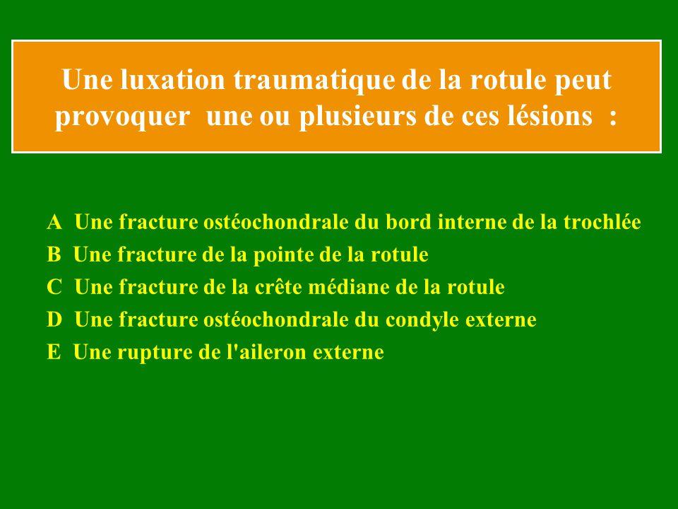 Une luxation traumatique de la rotule peut provoquer une ou plusieurs de ces lésions : A Une fracture ostéochondrale du bord interne de la trochlée B