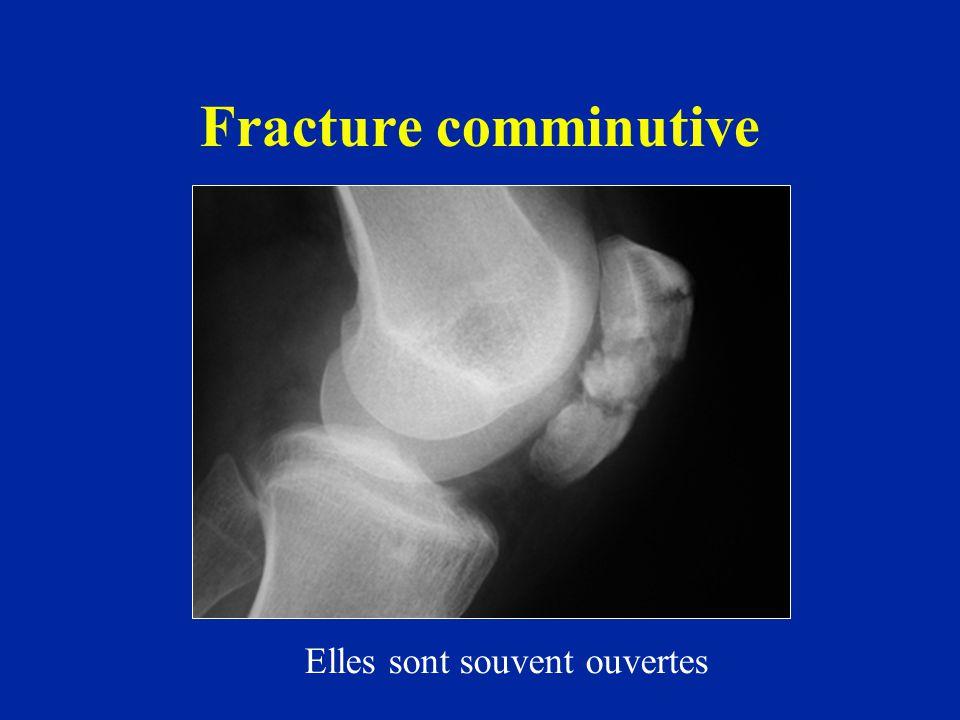Fracture comminutive Elles sont souvent ouvertes