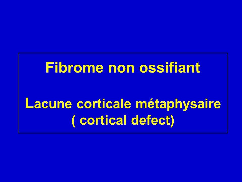 Fibrome non ossifiant et lacune corticale métaphysaire sont une même entité Dystrophie osseuse bénigne Tissu conjonctif se développant dans la métaphyse Localisation dans la corticale ou sous la corticale