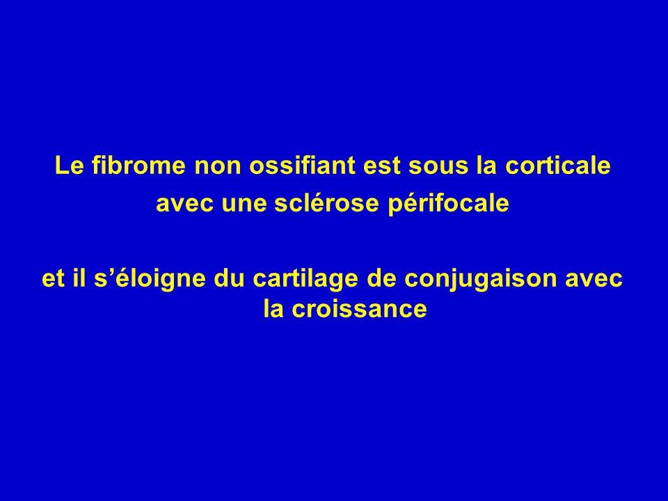 Le fibrome non ossifiant est sous la corticale avec une sclérose périfocale et il séloigne du cartilage de conjugaison avec la croissance