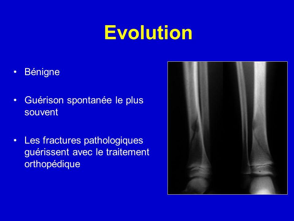 Evolution Bénigne Guérison spontanée le plus souvent Les fractures pathologiques guérissent avec le traitement orthopédique