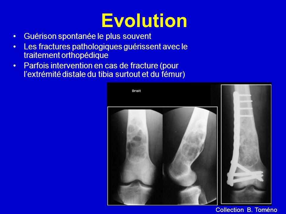 Evolution Guérison spontanée le plus souvent Les fractures pathologiques guérissent avec le traitement orthopédique Parfois intervention en cas de fracture (pour lextrémité distale du tibia surtout et du fémur) Collection B.