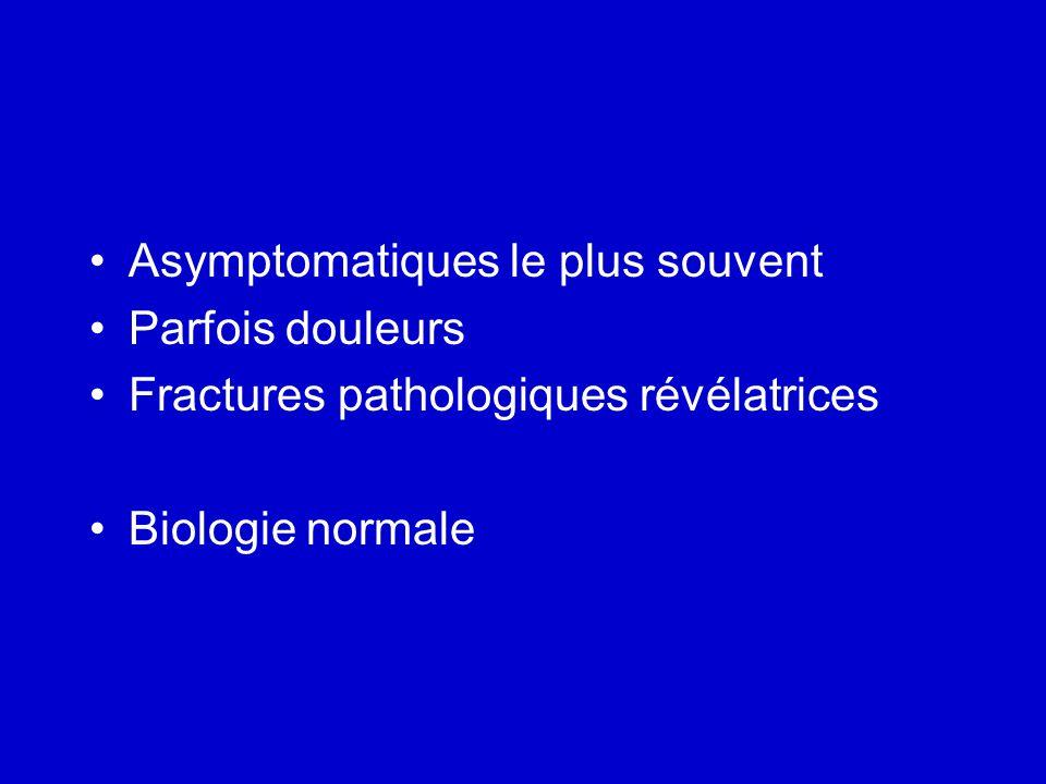 Asymptomatiques le plus souvent Parfois douleurs Fractures pathologiques révélatrices Biologie normale