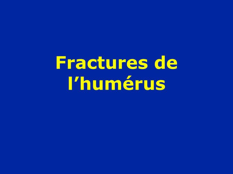 Fractures de lhumérus