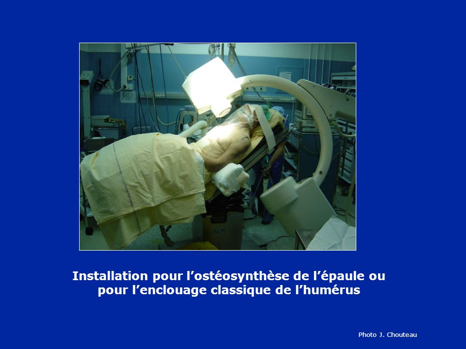 Installation pour lostéosynthèse de lépaule ou pour lenclouage classique de lhumérus Photo J. Chouteau