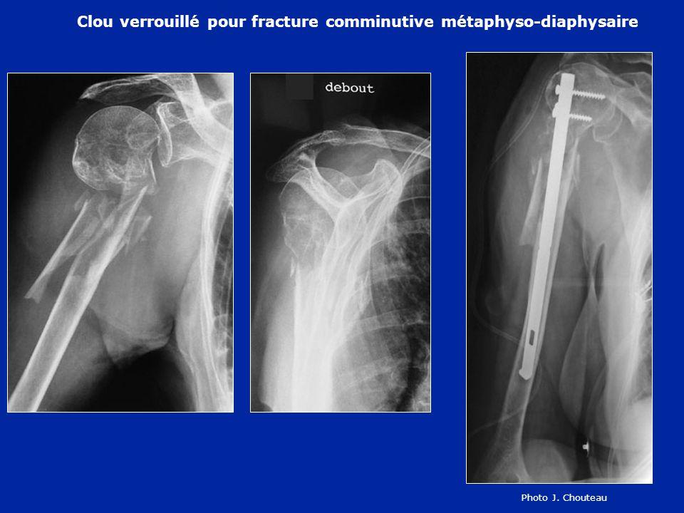 Clou verrouillé pour fracture comminutive métaphyso-diaphysaire Photo J. Chouteau