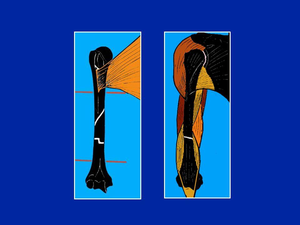 Évolution des fractures de lhumérus Les cals vicieux sont le fait du traitement orthopédique (déplacements secondaires) Les pseudarthroses se voient surtout après les ostéosynthèses ouvertes Paralysies radiales (surveillance EMG)