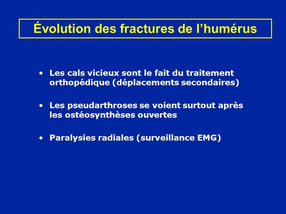 Évolution des fractures de lhumérus Les cals vicieux sont le fait du traitement orthopédique (déplacements secondaires) Les pseudarthroses se voient s