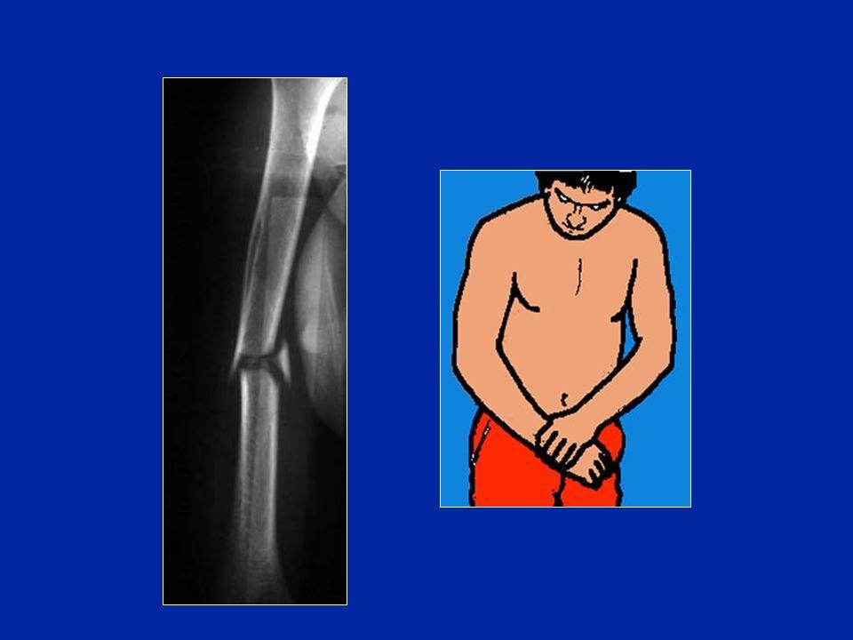 Clou verrouillé (Seidel) pour fracture diaphysaire spiroïde (itérative) Photo J. Chouteau