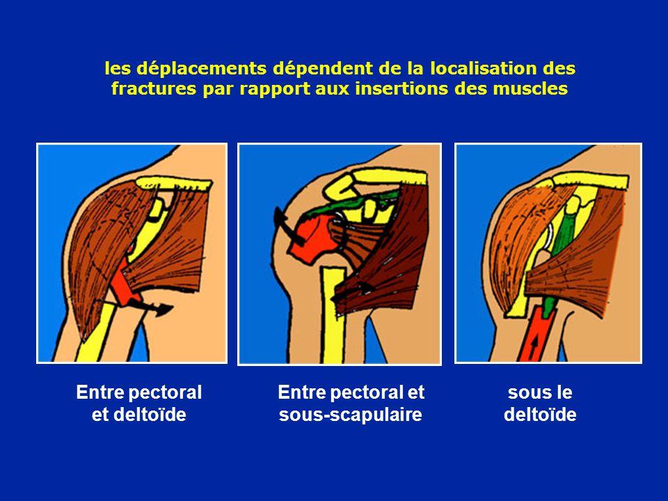 les déplacements dépendent de la localisation des fractures par rapport aux insertions des muscles Entre pectoral et deltoïde Entre pectoral et sous-s