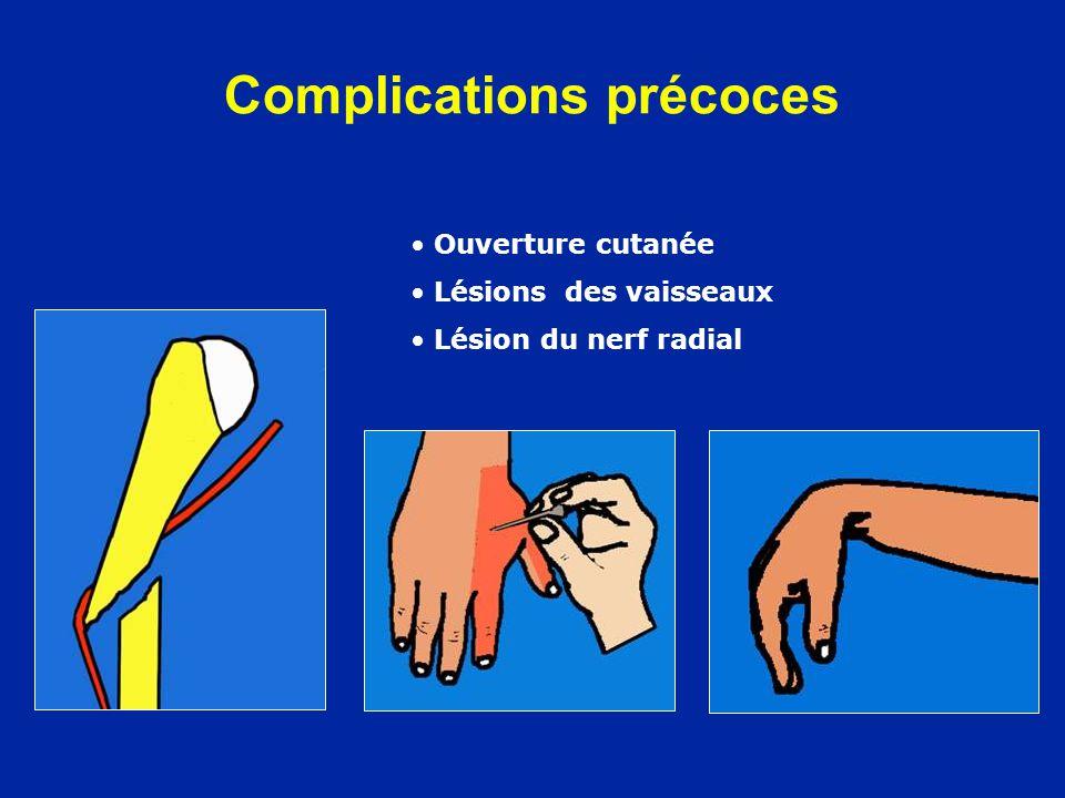 Complications précoces Ouverture cutanée Lésions des vaisseaux Lésion du nerf radial