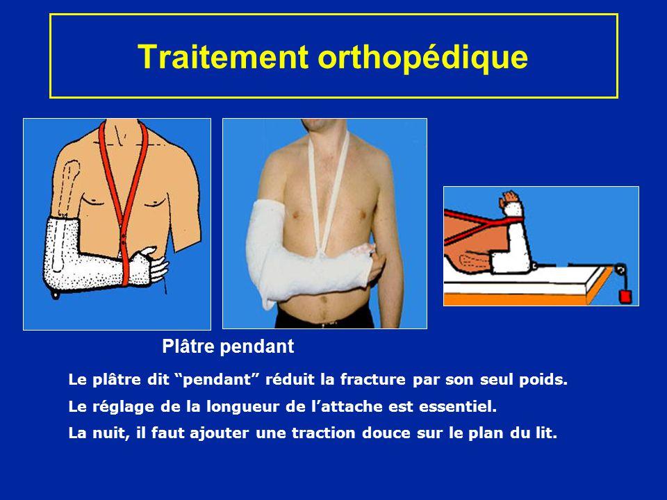 Traitement chirurgical Clou centro-médullaire Par en haut Clou rétrograde