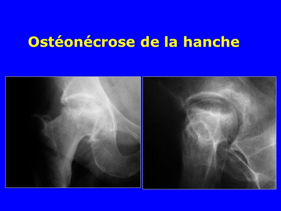 Ostéonécrose de la hanche