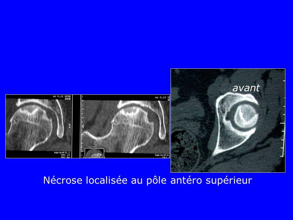 Nécrose localisée au pôle antéro supérieur avant