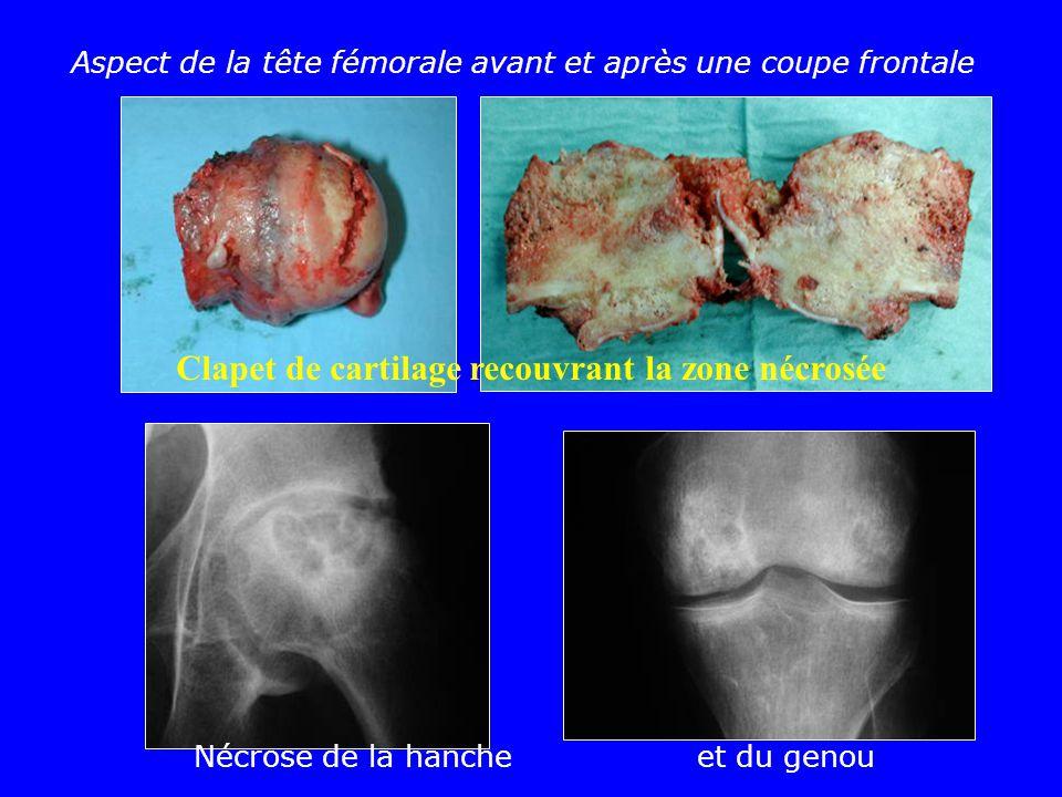 Nécrose de la hanche et du genou Aspect de la tête fémorale avant et après une coupe frontale Clapet de cartilage recouvrant la zone nécrosée