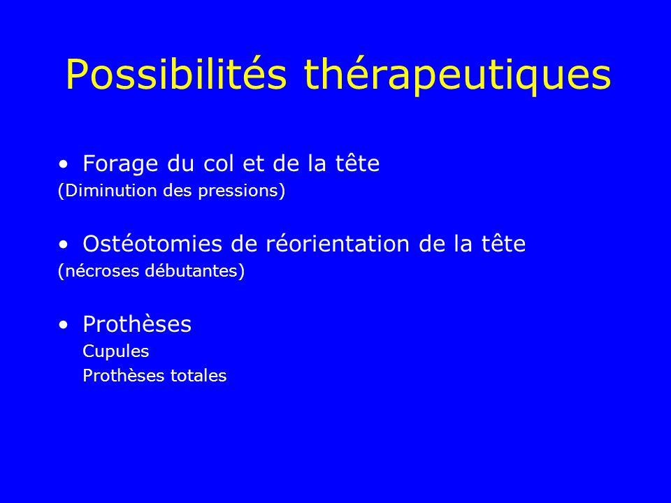Possibilités thérapeutiques Forage du col et de la tête (Diminution des pressions) Ostéotomies de réorientation de la tête (nécroses débutantes) Proth
