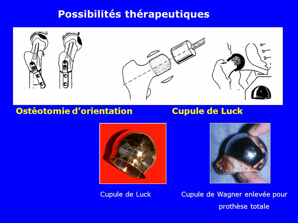 Ostéotomie dorientation Cupule de Luck Possibilités thérapeutiques Cupule de Luck Cupule de Wagner enlevée pour prothèse totale