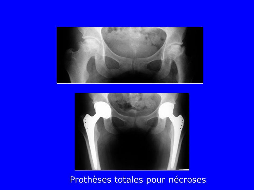 Prothèses totales pour nécroses