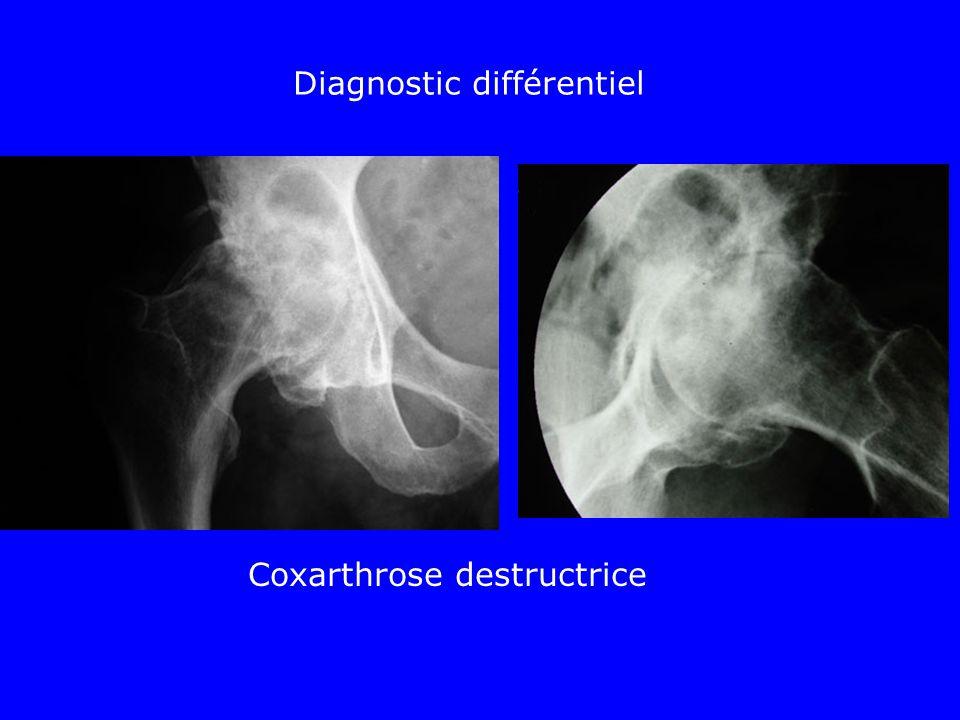 Diagnostic différentiel Coxarthrose destructrice