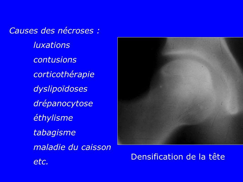 Causes des nécroses : luxations contusions corticothérapie dyslipoïdoses drépanocytose éthylisme tabagisme maladie du caisson etc. Densification de la