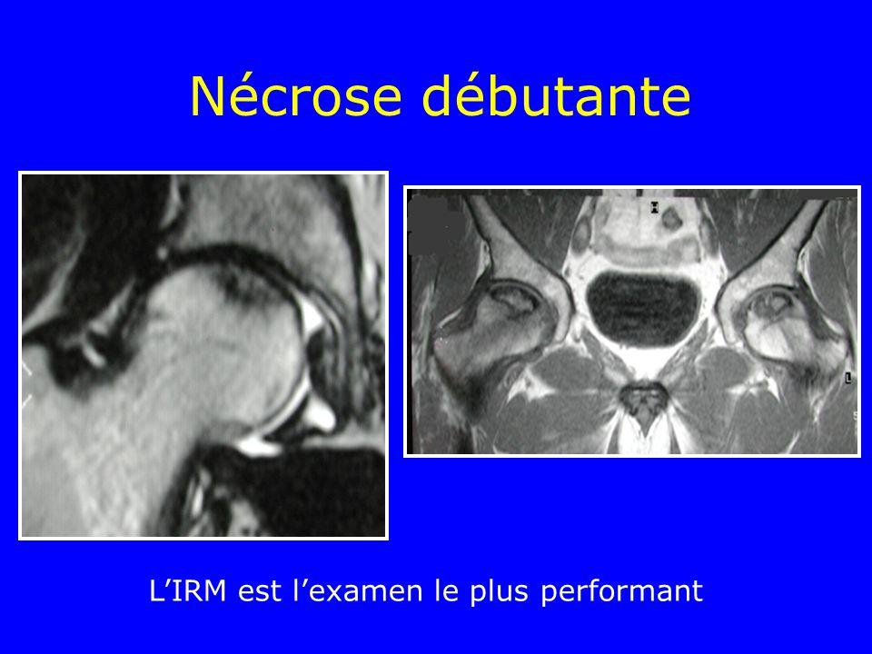 Nécrose débutante LIRM est lexamen le plus performant
