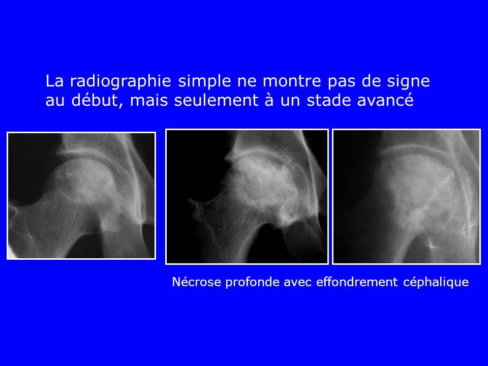 La radiographie simple ne montre pas de signe au début, mais seulement à un stade avancé Nécrose profonde avec effondrement céphalique