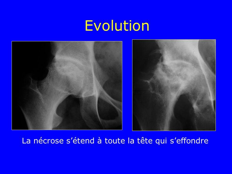 Evolution La nécrose sétend à toute la tête qui seffondre