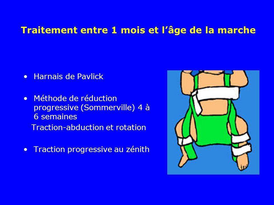 Traitement entre 1 mois et lâge de la marche Harnais de Pavlick Méthode de réduction progressive (Sommerville) 4 à 6 semaines Traction-abduction et ro