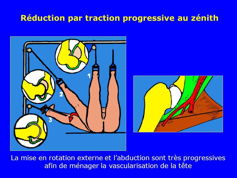 Réduction par traction progressive au zénith La mise en rotation externe et labduction sont très progressives afin de ménager la vascularisation de la tête