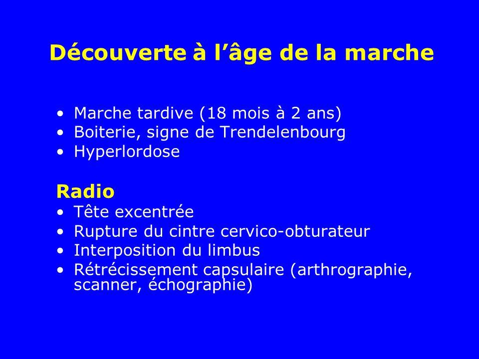 Marche tardive (18 mois à 2 ans) Boiterie, signe de Trendelenbourg Hyperlordose Radio Tête excentrée Rupture du cintre cervico-obturateur Interpositio