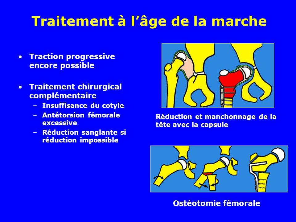 Traitement à lâge de la marche Traction progressive encore possible Traitement chirurgical complémentaire –Insuffisance du cotyle –Antétorsion fémoral